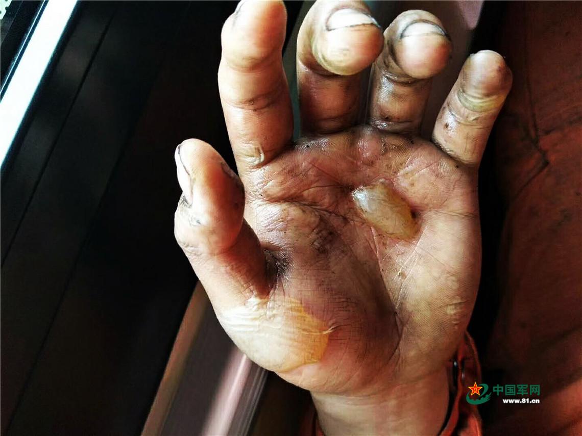 pk10最牛稳赚模式4码:这只手刷屏了_灭火后他才发现受了伤